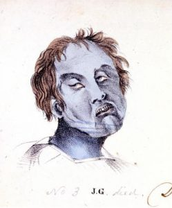Illustration of Cholera Asphyxia, by Horatio Bartley, 1832 New York Historical Society Library